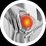 その他の膝の痛み イメージ