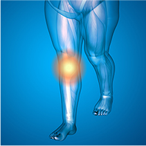 一次性の変形性膝関節症