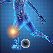 二次性の変形性膝関節症