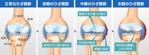 正常なひざ関節 初期のひざ関節 中期のひざ関節 末期のひざ関節