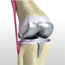 変形性膝関節症の手術的治療